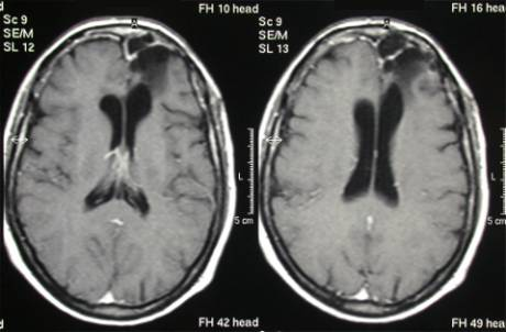 astrocytoma radical surgery