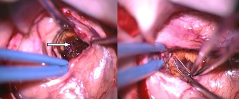 removal of the cavernoma