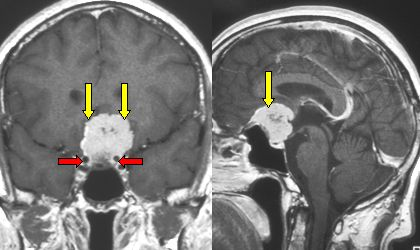 cranial base meningioma