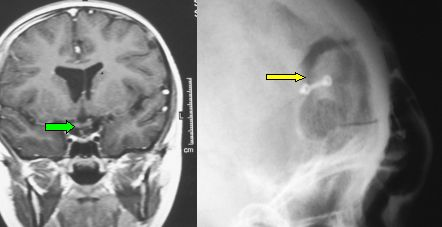 MRI shows the complete removal